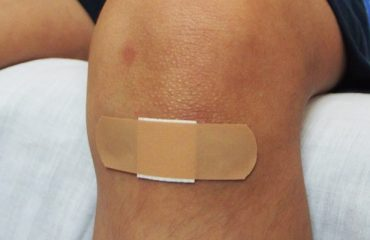 Wound Healing Of Human Health